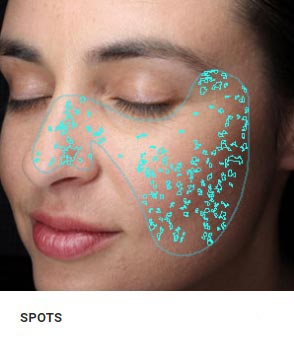 New York Skin Spot Analysis
