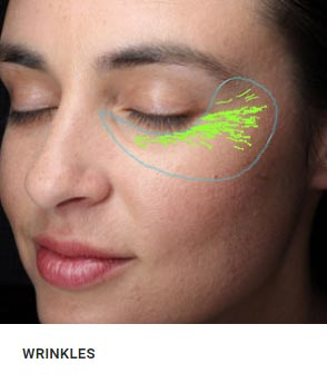 New York Wrinkle Analysis