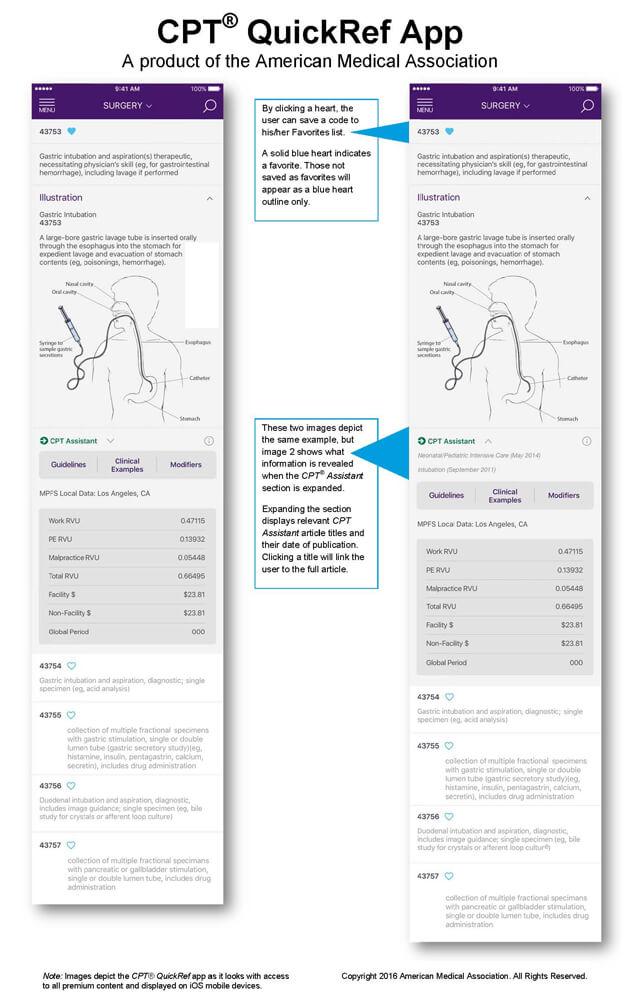 CPT Quickref App Example