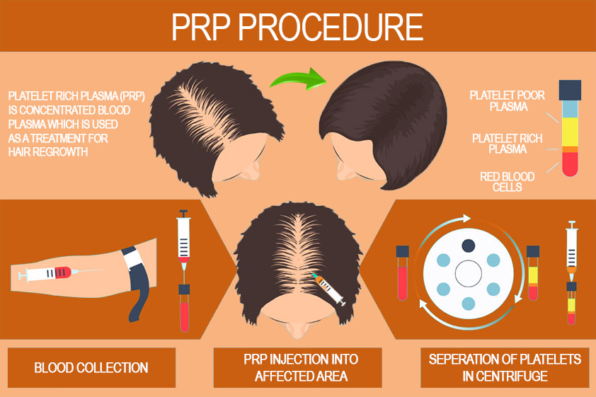 Image result for PRP hair therapy
