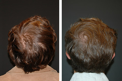 growth factor patient before after photos