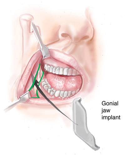 jaw implant incision