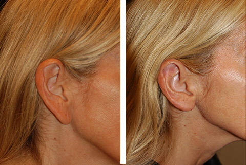 best earlobe reduction nyc