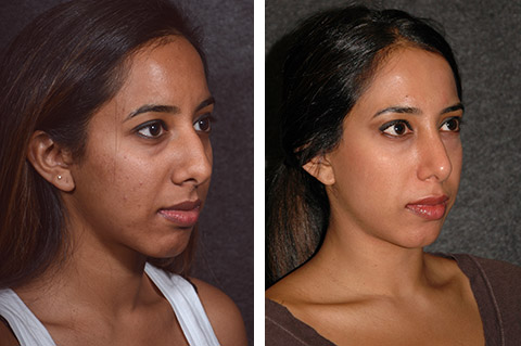 best ethnic rhinoplasty surgeon nyc