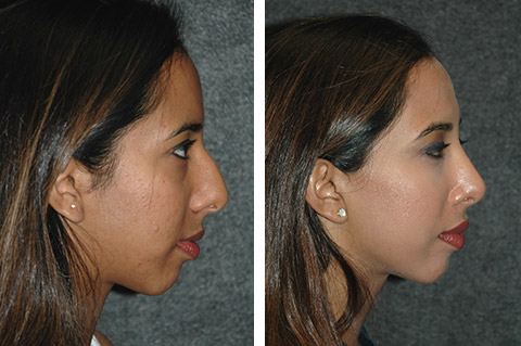 ethnic rhinoplasty patient photos