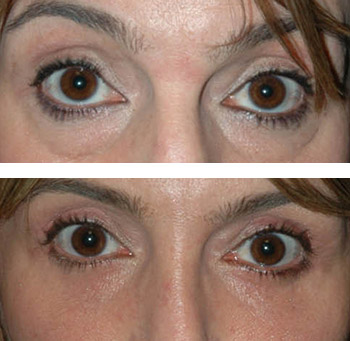eye lift before and after photos nyc