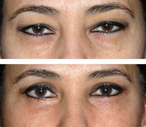 eye lift before and after photos