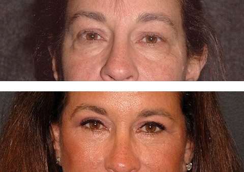 eyelid lift with fat transposition before and after