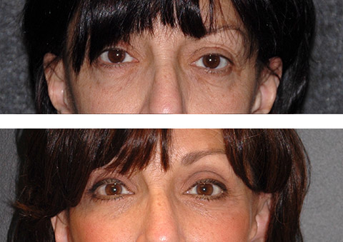fat transfer to upper blepharoplasty before and after