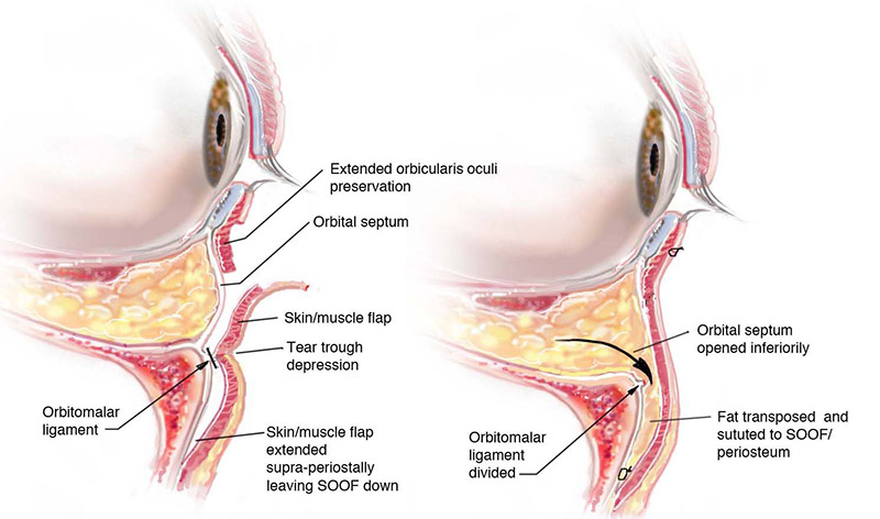 fat transposition blepharoplasty illustration
