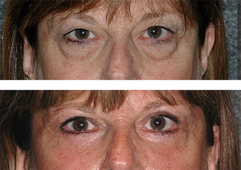 fat transposition lower blepharoplasty before and after