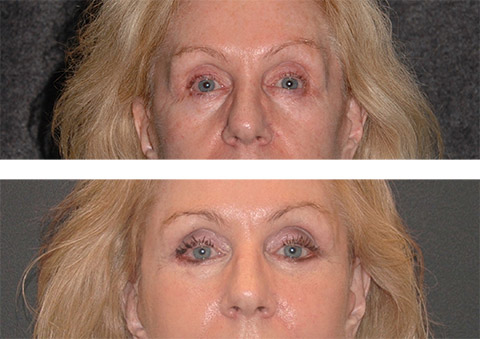 lower eyelid fat transfer before and after
