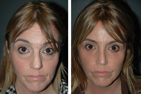 lower eyelid lift before and after with canthopexy