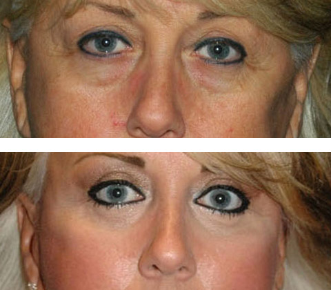 lower eye lift before and after
