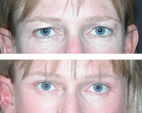 transcutaneous upper blepharoplasty before and after