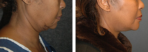 african american face lift surgery photos