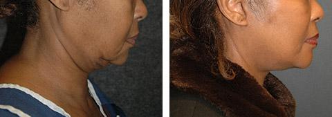 african american face lift surgery photos