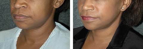 african american facelift before afters