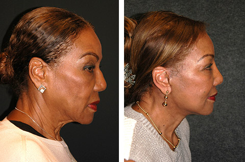 african american facelift before and after
