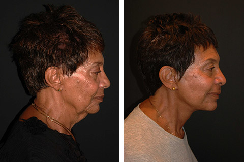 african american facelift patient before and after photos
