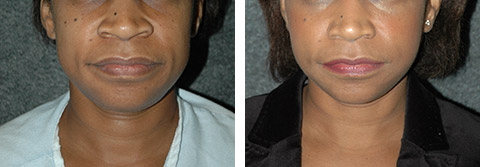 african american facelift photos