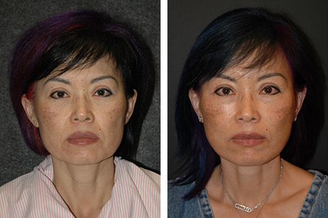 asian facelift before and after