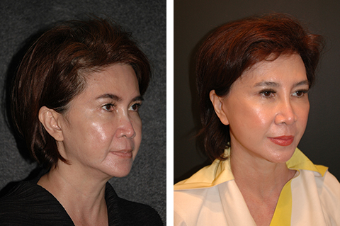 asian facelift before after patient photos