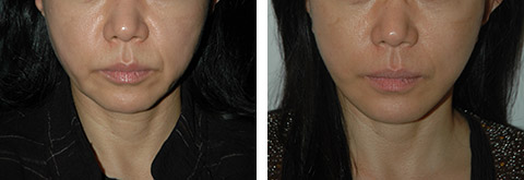 asian facelift photos