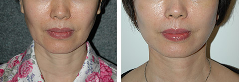 asian facelift results