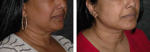 best african american facelift photos