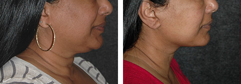best african american facelift surgeon