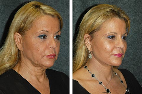 Deep Plane Facelift Best Deep Plane Facelift Surgeon