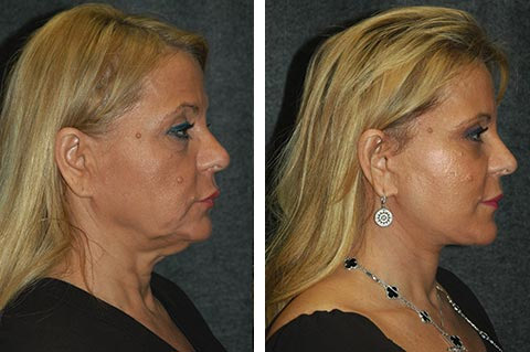 best deep plane facelift results