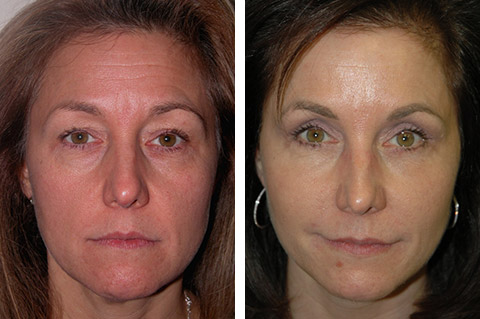 best liquid facelift results