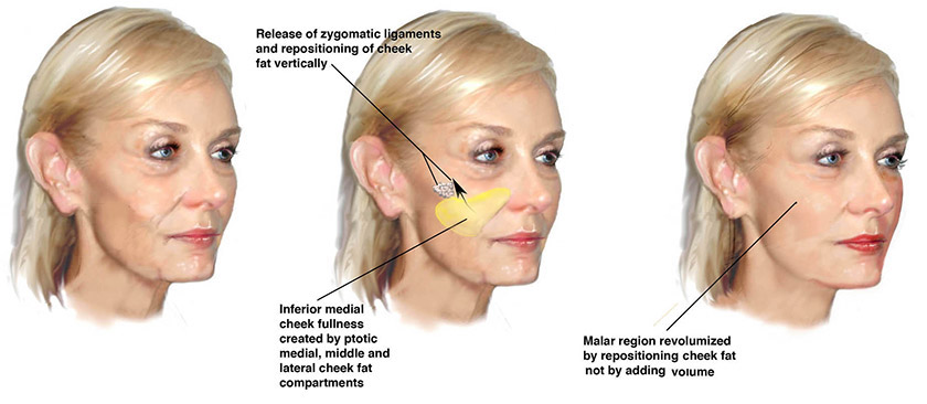 deep plane facelift cheek lift