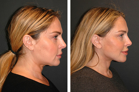 facelift at forty before and after