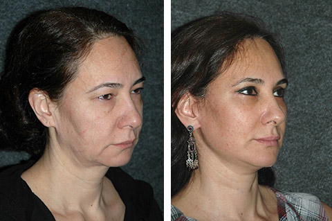 short scar facelift before and after patient photos