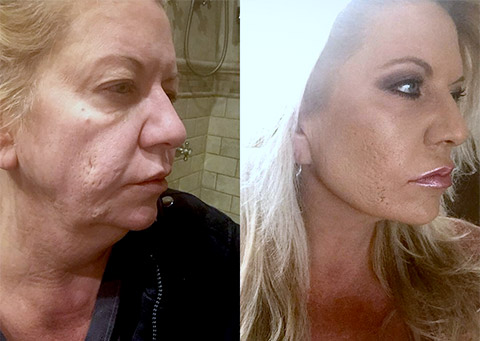 facelift patient before and after photo