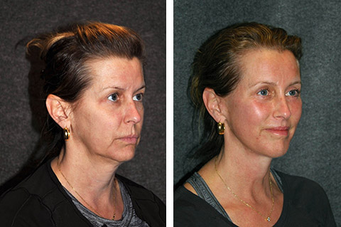 mini face lift before and after nyc best