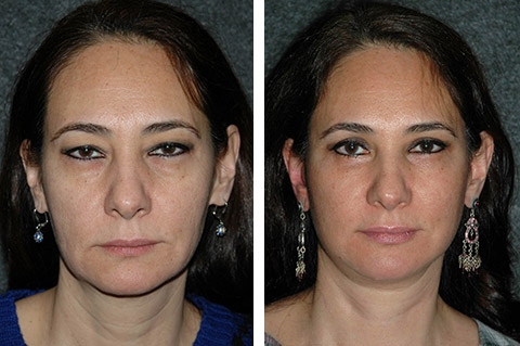 mini-facelift before and after photos