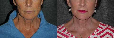 growth factor facelift before after