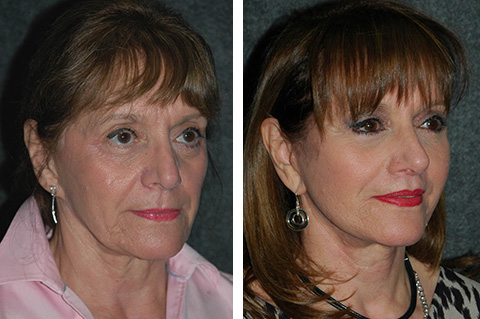 stem cell facelift before and after photos