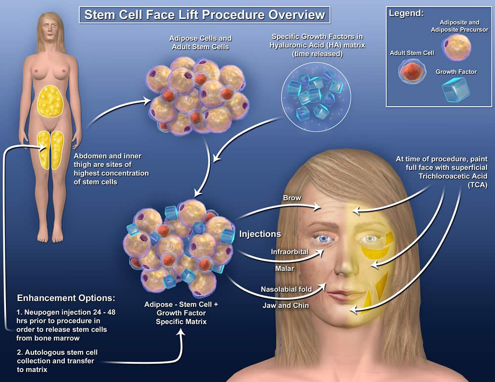 stem cell facelift diagram