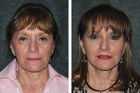 stem cell facelift patient results