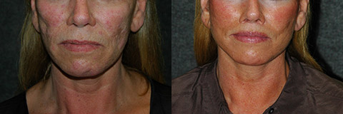 growth factor facelift results