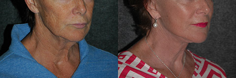 stem cell facelift surgery photos