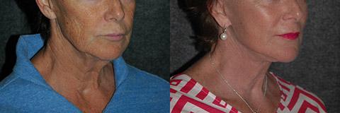 growth factor facelift surgery photos