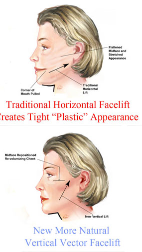 Vertical Facelift New York