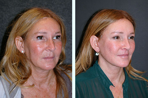 best facelift before and after