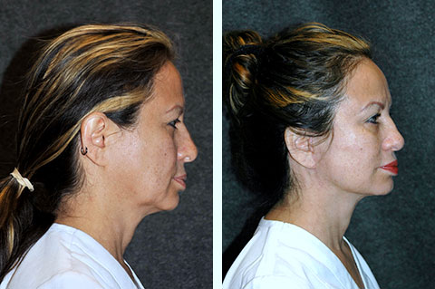 best facelift nyc
